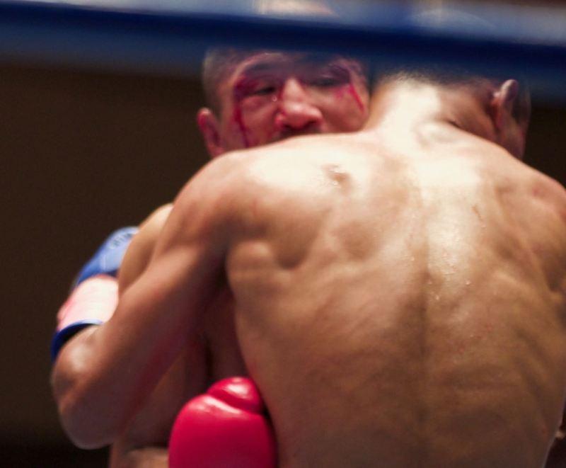 Şampiyon Otake Venezuellalı rakibi karşısında zaman zaman zorlandı
